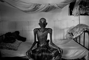 """From the series """"Tuberculosis in Bangladesh"""""""