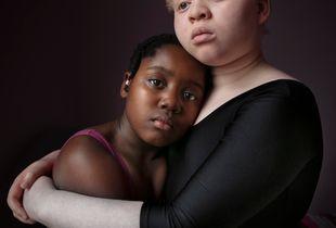 Sisters Precious & Favour, Precious has albinism.