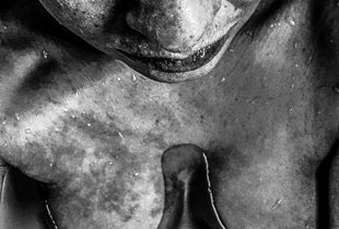 My skin and me, self-portrait