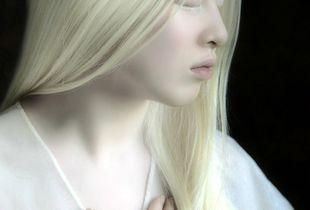 Albino girl from China