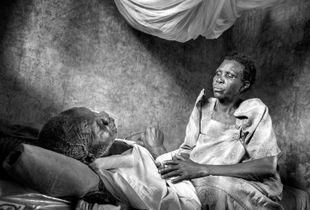 Africa's growing cancer burden