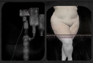 Alchemy and abdominoplasty °1 (from the series PHOTO-BODIES: In between the edge of a stitched soul)