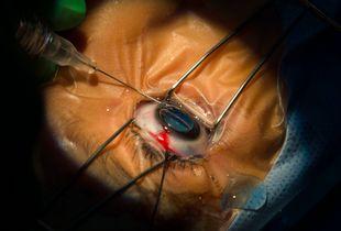 Maria mid surgery