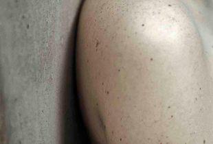 Untitled I (Skin Studies series)