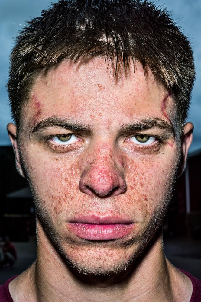 Face Portraits By Bruce Gilden Lensculture