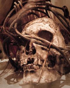 Binding the skull