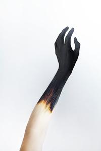 Sunburned, 2015