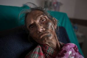 A victim of earthquake is being treated in Bir Hospital in Kathmandu, Nepal