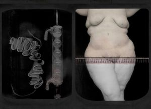 Alchemy and abdominoplasty (from the series PHOTO-BODIES: In between the edge of a stitched soul)