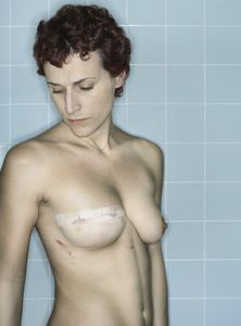 Self-Portrait, Post-Reconstruction I, 12.2006