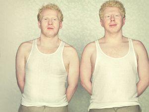 Albinos © Gustavo LACERDA and Photoquai 2013