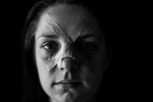 Hurt © Alan Thomas Duncan Wilkie