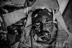 Sabina's father in DMC burn unit.He is a truck driver and the only earner of his family.© Anik Rahman
