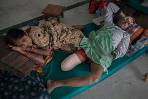 Ram Chandra Das (49) lost his right leg in earthquake, lying with his wife at Bir hospital in Kathmandu, Nepal