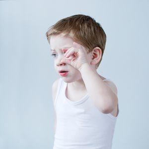 A DIFFERENT LOOK - a closer look on albinism. (ANDERS KIJKEN)