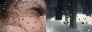 SunDrops-RainDrops