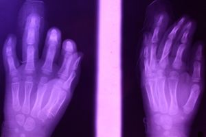 X-Ray: Purple hands, Age 3, 2019
