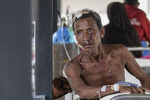 An earthquake survivor, M. Jaafar M. Sabi, 63 years old, receives medical treatment at the makeshift hospital in Pidie Jaya, Aceh province, on December 9, 2016.
