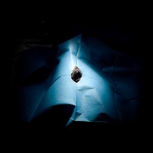 Bonnie, 2. Corneal dystrophy. Transplantation. © Luigi Avantaggiato