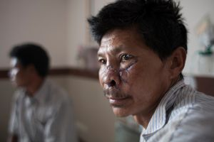 Satman Tamang (48) is a victim of earthquake,  being treated in Bir Hospital in Kathmandu, Nepal