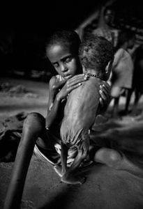 Starvation: Somalia