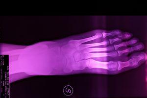 X-Ray: Purple foot, Age 36, 2019