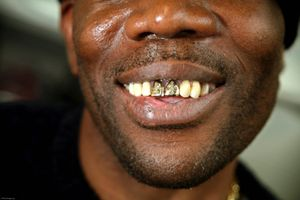 A prisoner shows off his gold teeth with crosses engraved in them.HMP Coldingley, Surrey was built in 1969 and is a Category C training prison. Coldingley is focused on the resettlement of prisoners and all prisoners must work a full working week within the prison. Its capacity is 390 prisoners.