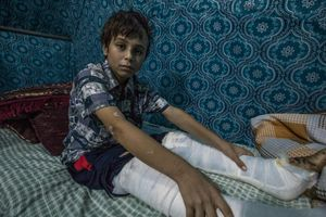 Both of Tomas's legs were broken by an airstrike which hit his house that he hided in.