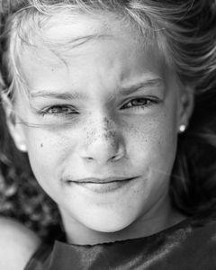 Tender Freckles