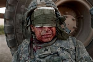 U.S. Army Sergeant Phil Poitra from the 276th Engineer Battalion sits with head injuries after an Improvised Explosive Device (IED) attack. © Adam Ferguson