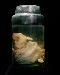 Glass Jar. TÛ DÛ OBSTETRICS HOSPITAL. HO CHI MINH CITY, VIET NAM. 2015