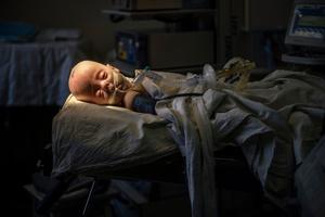 Anna, 6 months, hydrocefalus,Pediatric Clinic of Neurosurgery in Kiev.