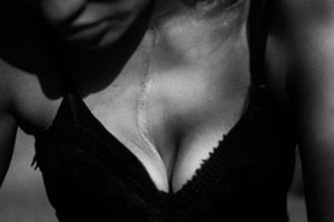 Las  cicatrices de Leidy