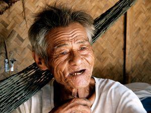 Smiling wrinkles