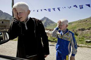 Two albino brothers begging near the Irani border city of Haj Omaran. © Tom Verbruggen