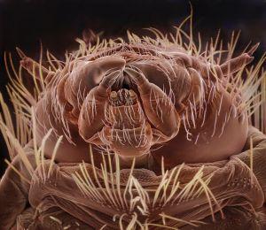 Bathroom Rug, August 2nd [Carpet Beetle Larva]