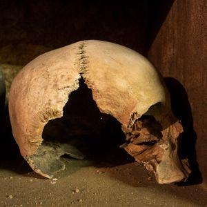 Broken cheek and side of skull