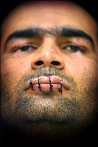 2nd prize People in the News Singles © Paul Vreeker, The Netherlands, Reuters, Protest against deportation. Iranian asylum-seeker Mehdy Kavousi sewed up his lips and eyelids and went on hunger strike to protest against his threatened deportation from the Netherlands, in February.
