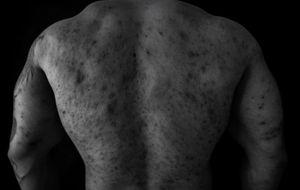Abuse © Alan Thomas Duncan Wilkie