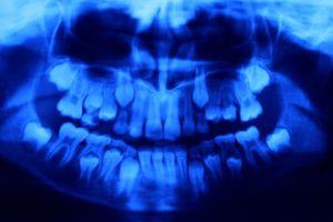 X-Ray: Blue teeth, Age 8, 2019