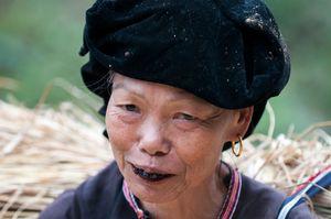 The black teeth of a Black Lu woman