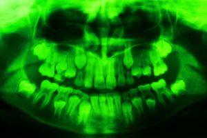 X-Ray: Green teeth, Age 8, 2019