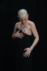 Patti; Cancer 1