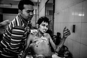 Al-Amin is a minibus driver who feeds his family and for this he has to go out every morning to earn money. But during driving the minibus he was attacked by the political picketer on a road blockade day.© Anik Rahman