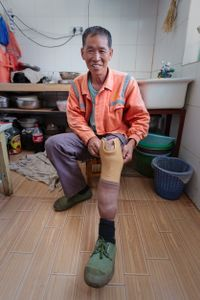 Li had an accident at the age of two, which caused osteomyelitis and, eventually, the loss of his left leg. His artificial limb allows him to lead an active life and he can still ride his motorcycle.