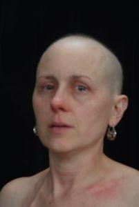 Patti; Cancer 9