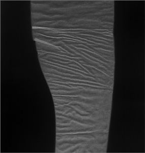 Second Skin. © Elaine Duigenan
