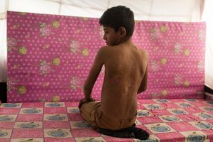 15/01/2015 -- Kirkuk, Iraq -- Mahmud Hazbar was wounded by Iraqi planes' bombing when he was with his family on the way to Qratapa, after leaving their village. At the same time he lost three brothers and one sister.