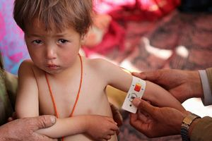 Malnutrition is a common threat to the lives of children in Afghanistan