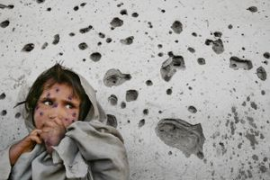 Mahbooba stands against a bullet-ridden wall, waiting to be seen at a medical clinic. The 7-year-old girl suffers from leishmaniasis, a parasitical infection. Kabul, Afghanistan. March 1, 2002. © Paula Bronstein/Getty Images
